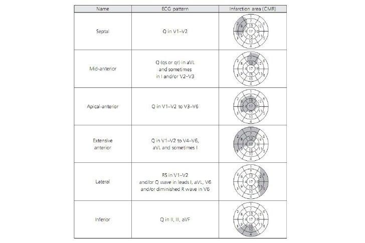 • EKG, LAD Distal versus Proximal