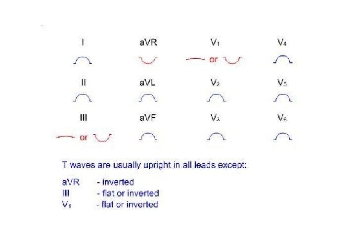 ONDAS                     T HIPERAGUDAS HATW• Morfología & Clues  – Amplitud >0.5mV en extremidades y >1,0 mV en precordia...