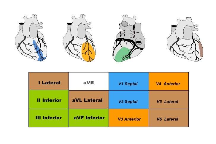 IAM PARED INFERIOR• Dominancia se refiere a arteria que da DP• Pared inferior es irrigada por:   – ACD 80-85%: dominancia ...