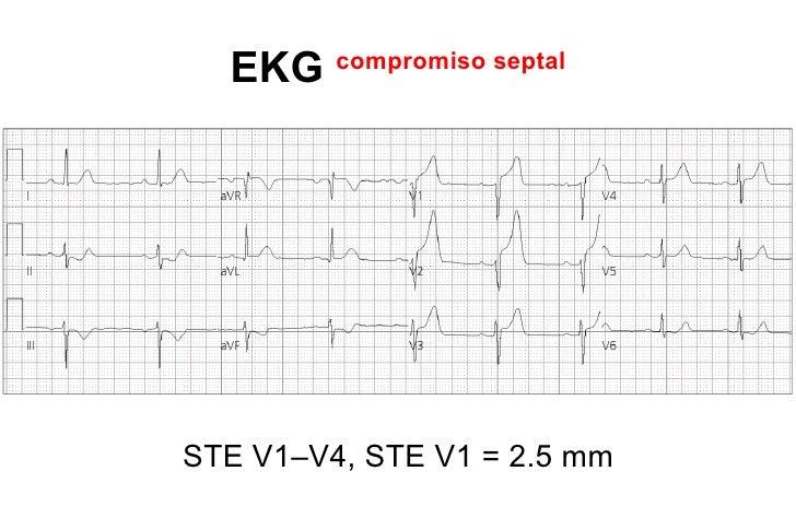 PARED INFERIOR ACx         •INFERO-LATERAL más común ACx         •IAM ACx 30% no manifestación EKG         •Más raro que d...