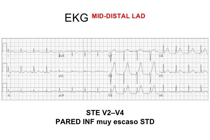 Algoritmo FiolAnn Noninvasive Electrocardiol. 2004