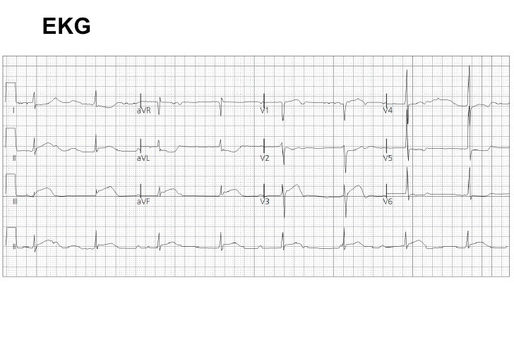 EKG 5