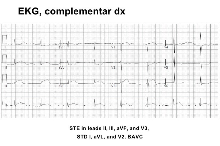 EKG 6