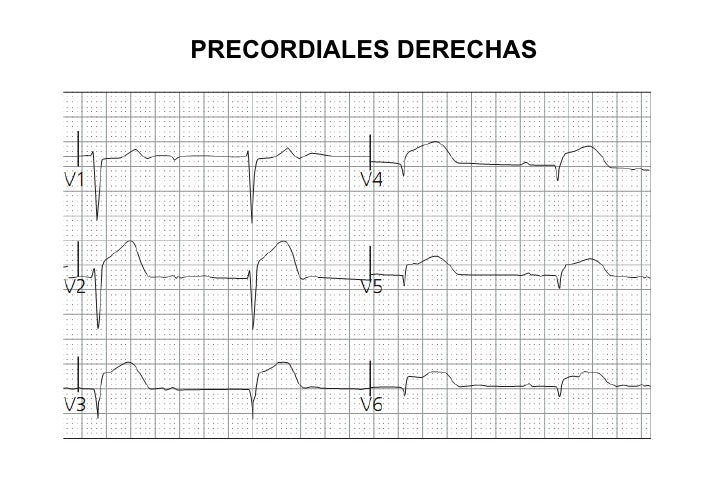 EKG 7