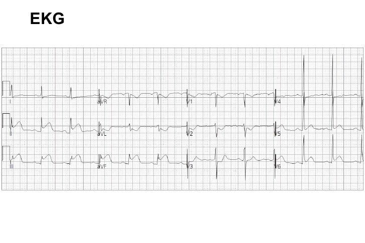 EKG 9