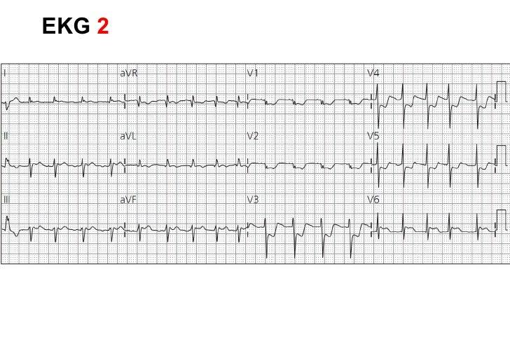 "EKG  STE en DII  V2 le falta STE discordante con QRS (""STD relativa"")"