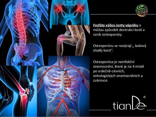 """Fosfáty vážou ionty vápníku a můžou způsobit destrukci kostí a vznik osteoporózy. Osteoporózu se nazývají """" laskavý zloděj..."""