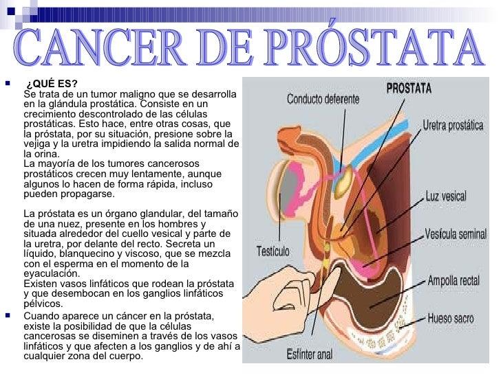 porque da la prostata