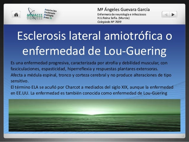 Mª Ángeles Guevara García Enfermera de neurología e infecciosos H.U.Reina Sofía. (Murcia) Colegiada Nº 7699  Esclerosis la...