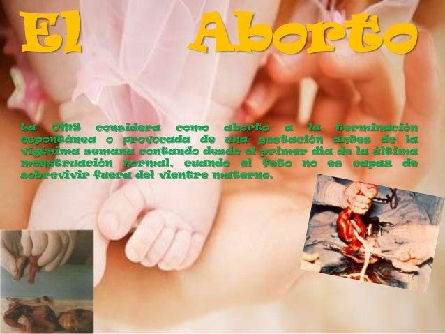 El                      AbortoLa   OMS   considera    como  aborto  a la   terminaciónespontánea o provocada de una gestac...