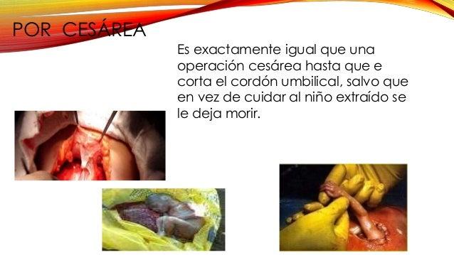 MEDIANTE PROSTAGLANDINAS Este fármaco provoca un parto prematuro durante cualquier etapa del embarazo y en las ultimas de ...