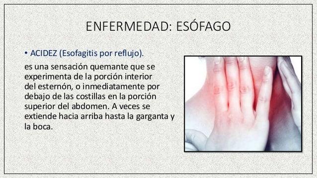 ENFERMEDAD: ESÓFAGO • ACIDEZ (Esofagitis por reflujo). es una sensación quemante que se experimenta de la porción interior...