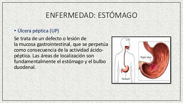 ENFERMEDAD: ESTÓMAGO • Úlcera péptica (UP) Se trata de un defecto o lesión de la mucosa gastrointestinal, que se perpetúa ...