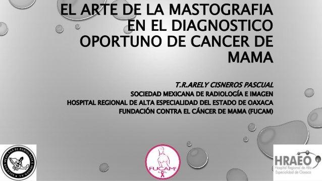 EL ARTE DE LA MASTOGRAFIA EN EL DIAGNOSTICO OPORTUNO DE CANCER DE MAMA T.R.ARELY CISNEROS PASCUAL SOCIEDAD MEXICANA DE RAD...