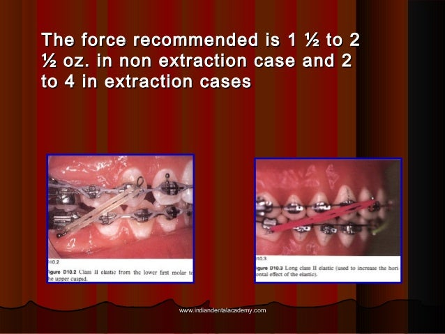 The force recommended is 1 ½ to 2 ½ oz. in non extraction case and 2 to 4 in extraction cases  www.indiandentalacademy.com