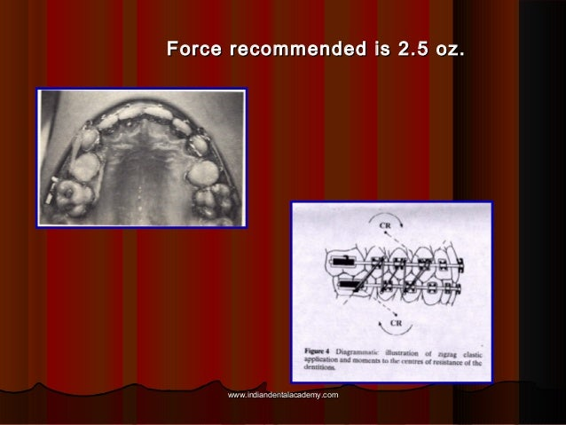 Force recommended is 2.5 oz.  www.indiandentalacademy.com