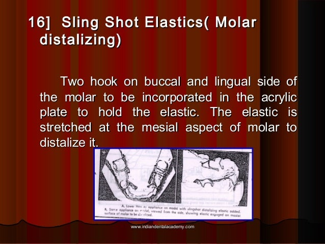 16] Sling Shot Elastics( Molar distalizing) Two hook on buccal and lingual side of the molar to be incorporated in the acr...