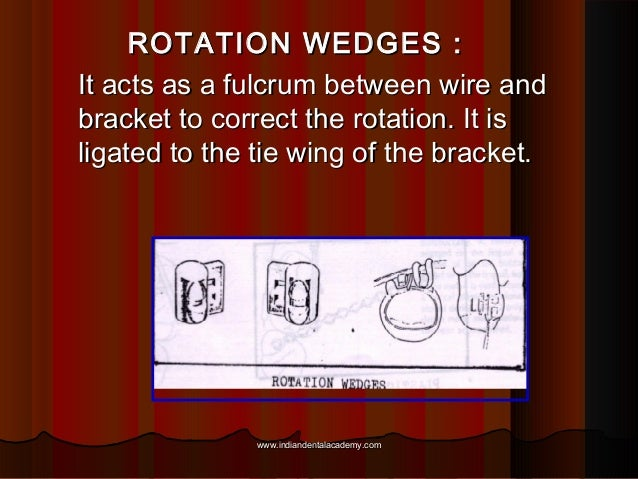 ROTATION WEDGES : It acts as a fulcrum between wire and bracket to correct the rotation. It is ligated to the tie wing of ...