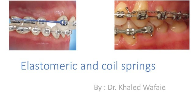 Elastomeric and coil springs By : Dr. Khaled Wafaie