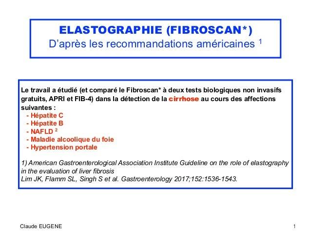 ELASTOGRAPHIE (FIBROSCAN*) D'après les recommandations américaines 1 Le travail a étudié (et comparé le Fibroscan* à deux ...