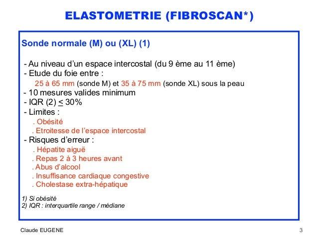 ELASTOMETRIE (FIBROSCAN*) Sonde normale (M) ou (XL) (1) - Au niveau d'un espace intercostal (du 9 ème au 11 ème) - Etude d...