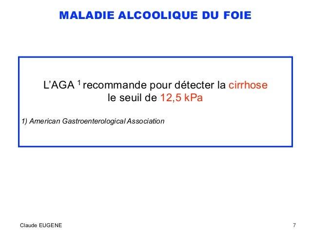MALADIE ALCOOLIQUE DU FOIE L'AGA 1 recommande pour détecter la cirrhose le seuil de 12,5 kPa 1) American Gastroenterologic...