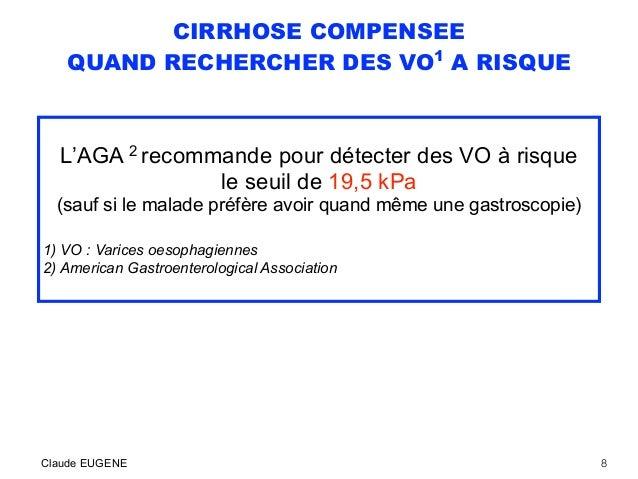 CIRRHOSE COMPENSEE QUAND RECHERCHER DES VO1 A RISQUE L'AGA 2 recommande pour détecter des VO à risque le seuil de 19,5 kPa...