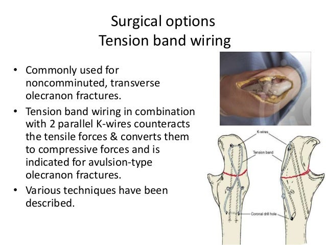 Astounding Dislocations Fractures Of Elbow In Adults Wiring Digital Resources Nekoutcompassionincorg