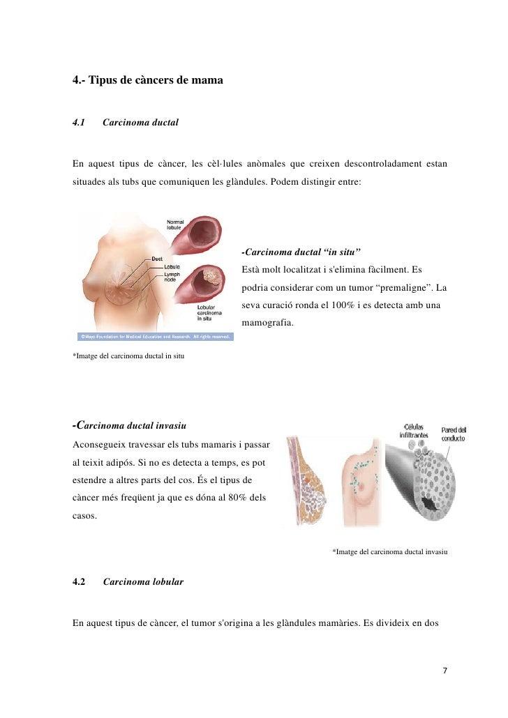 4.- Tipus de càncers de mama4.1      Carcinoma ductalEn aquest tipus de càncer, les cèl·lules anòmales que creixen descont...