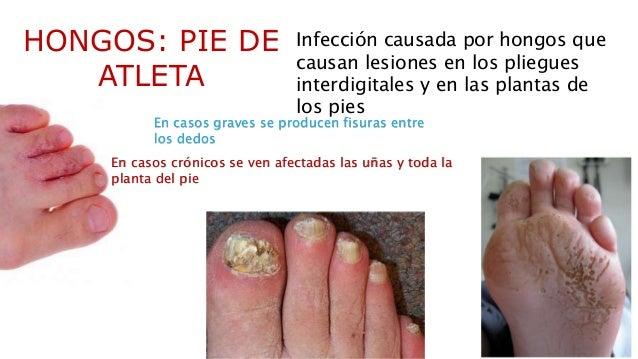 El hongo de las uñas a los niños el médico