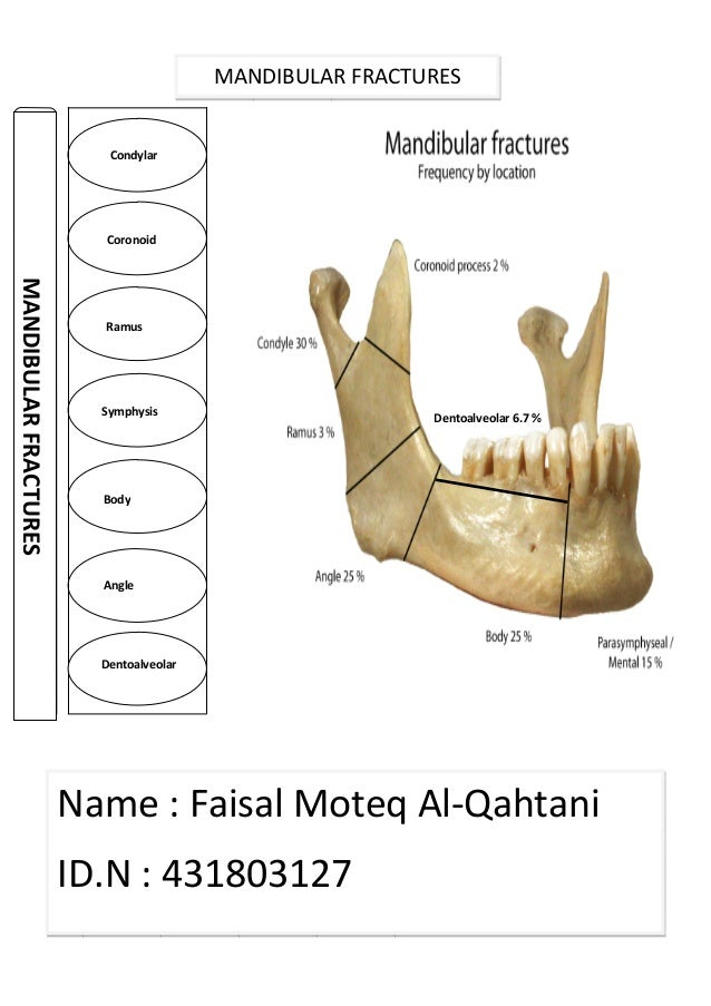 MANDIBULARFRACTURES Condylar Coronoid Ramus Symphysis Body Angle Dentoalveolar MANDIBULAR FRACTURES Name : Faisal Moteq Al...