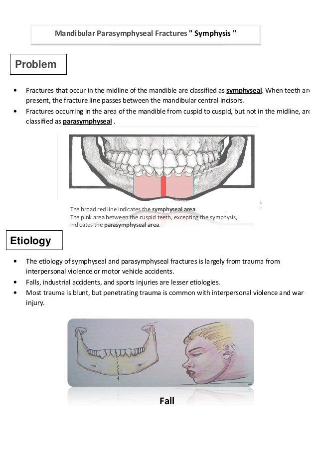 Symphysis Angle Mandibular Fractures