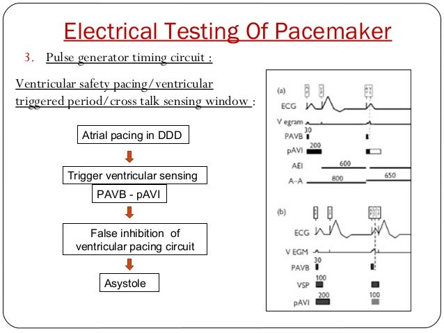 Pacemaker Circuit Diagram ndash The Wiring Diagram