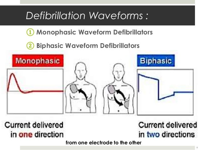 defibrillation essays - monophasic and biphasic The defibrillation efficacy of the 150-j biphasic waveform was superior to that of the 200- to 360-j monophasic waveforms, the researchers said.