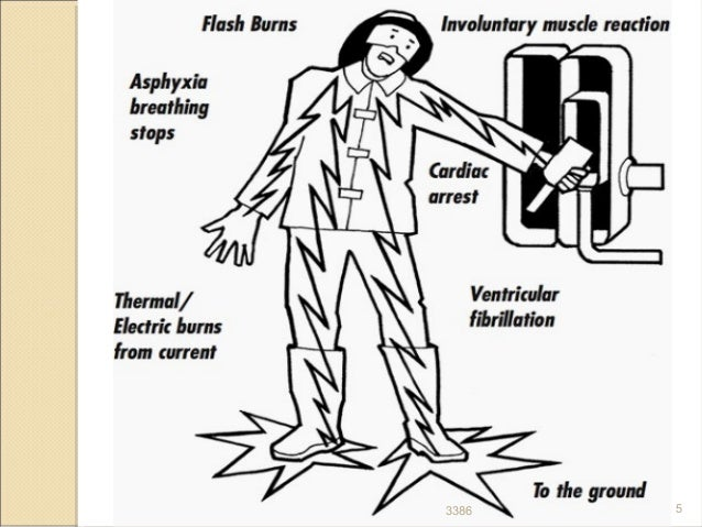 electrical wiring electric shock and electrocution choice