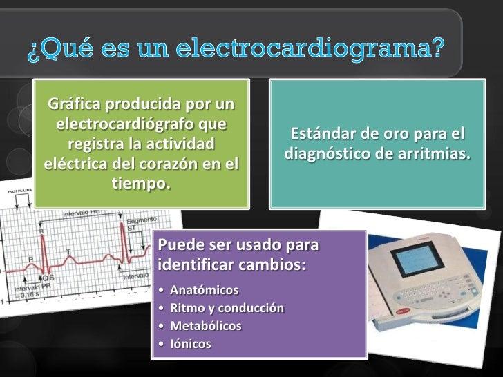 Electrocardiografía clínica Slide 2