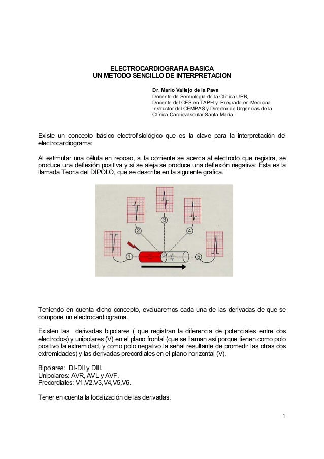 1ELECTROCARDIOGRAFIA BASICAUN METODO SENCILLO DE INTERPRETACIONDr. Mario Vallejo de la PavaDocente de Semiología de la Clí...