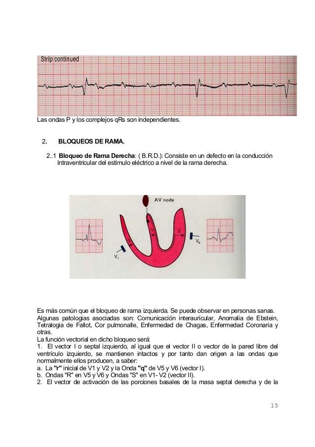 15Las ondas P y los complejos qRs son independientes.2. BLOQUEOS DE RAMA.2..1 Bloqueo de Rama Derecha: ( B.R.D.): Consiste...