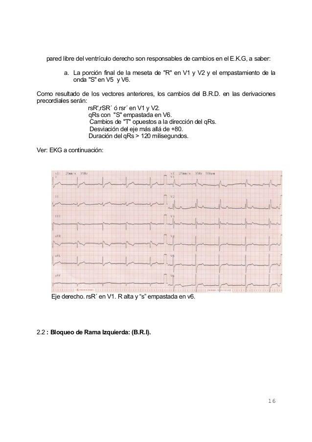 16pared libre del ventrículo derecho son responsables de cambios en el E.K.G, a saber:a. La porción final de la meseta de ...