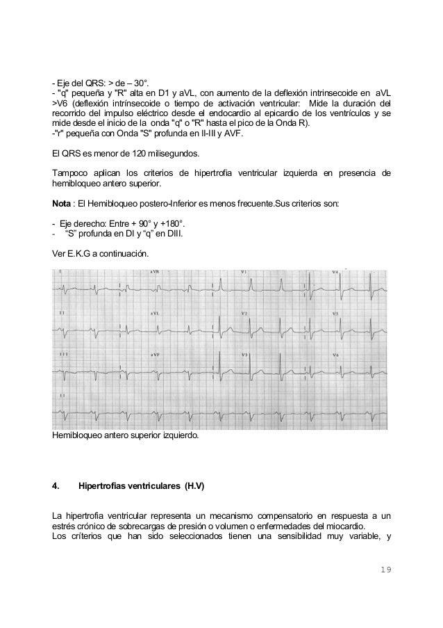 """19- Eje del QRS: > de – 30°.- """"q"""" pequeña y """"R"""" alta en D1 y aVL, con aumento de la deflexión intrinsecoide en aVL>V6 (def..."""
