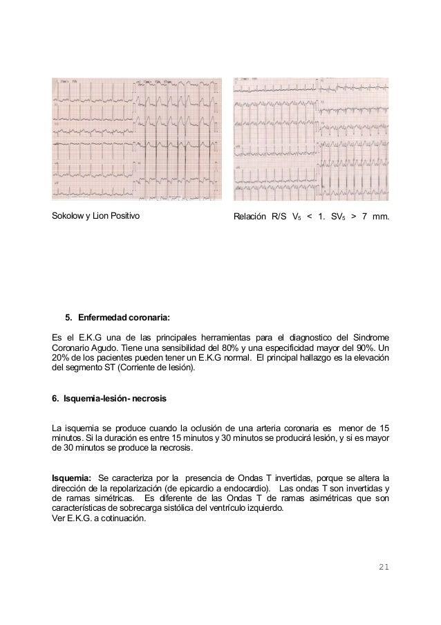 21Sokolow y Lion Positivo Relación R/S V5 < 1. SV5 > 7 mm.5. Enfermedad coronaria:Es el E.K.G una de las principales herra...