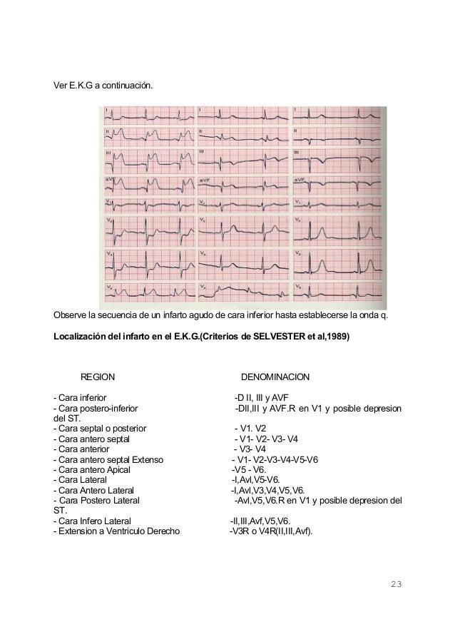 23Ver E.K.G a continuación.Observe la secuencia de un infarto agudo de cara inferior hasta establecerse la onda q.Localiza...