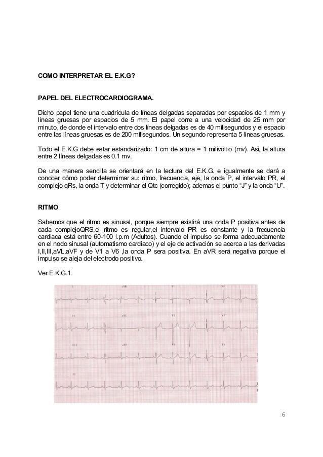 6COMO INTERPRETAR EL E.K.G?PAPEL DEL ELECTROCARDIOGRAMA.Dicho papel tiene una cuadrícula de líneas delgadas separadas por ...