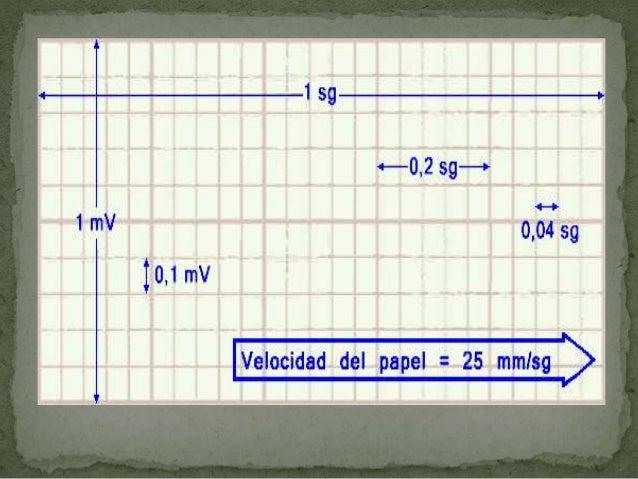  Segmento S-T: Este segmento se mide desde el punto J  (que es la unión de la parte final de S) hasta el  comienzo de la ...