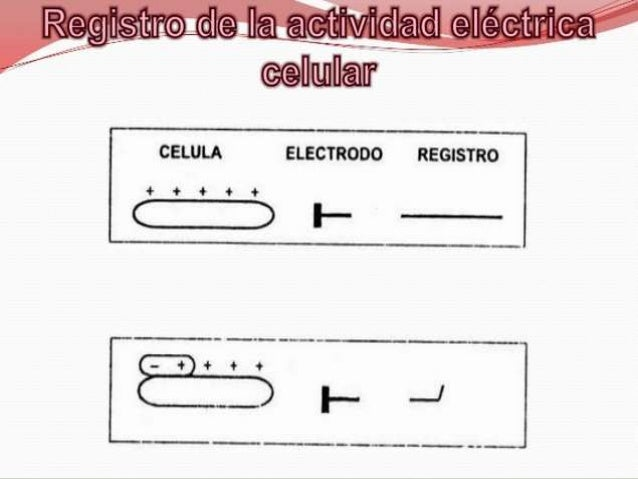  VA EN Relación CON LA ONDA T EN EL  ELECTROCARDIOGRAMA SUBENDOCARDICA            SUBEPICARDICA