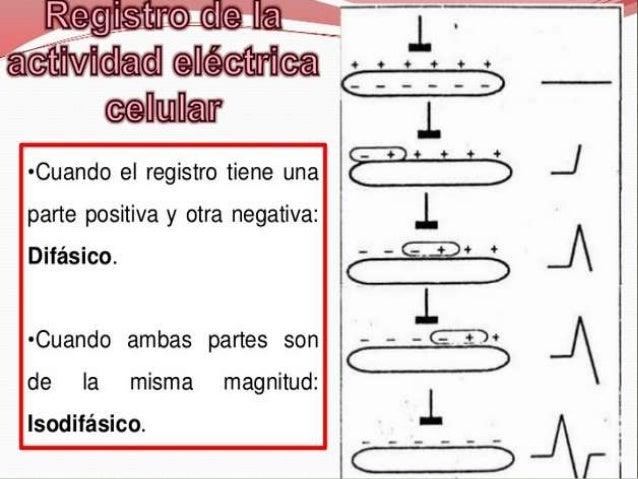  VA EN RELACION CON EL SEGMENTO ST SEGMENTO ST (+) SUBEPICARDICO SEGMENTO ST (-) SUBENDOCARDICO