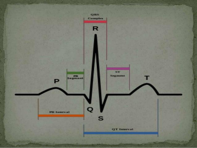 ANALISIS: RITMO, EJE Y FRECUENCIARitmoNos indica que estructura comanda la actividad eléctrica del corazón. Elritmo normal...