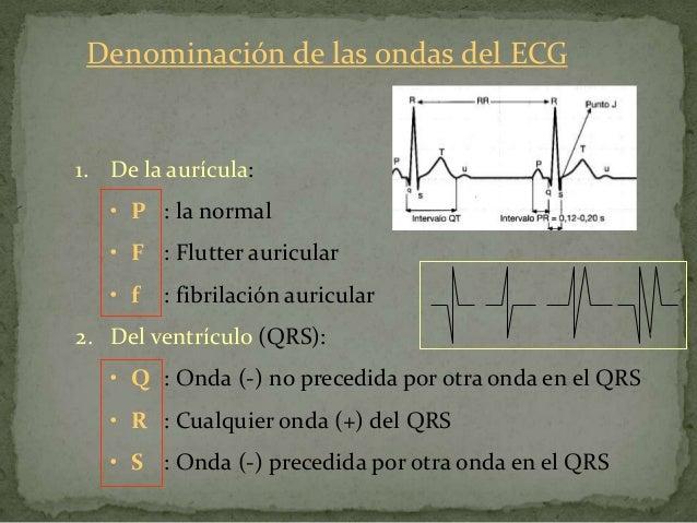 Valores del ECG del ritmo sinusal normalI.- Frecuencia de los complejos PQRSTa)   Normal en el adulto: 60-100 l.p.m.      ...