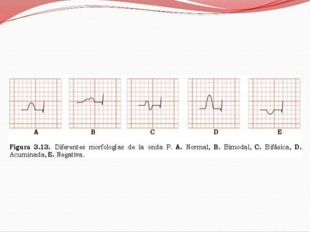DETERMINACIÓN DE LA FC          VENTRICULAR EN EL ECGFrecuencia CardíacaTambién existen varios métodos para obtener la fre...