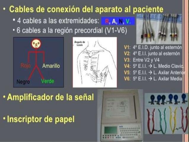 Derivaciones electrocardiográficas Concepto  Puntos de contacto entre el electrocardiógrafo y la  superficie del paciente,...